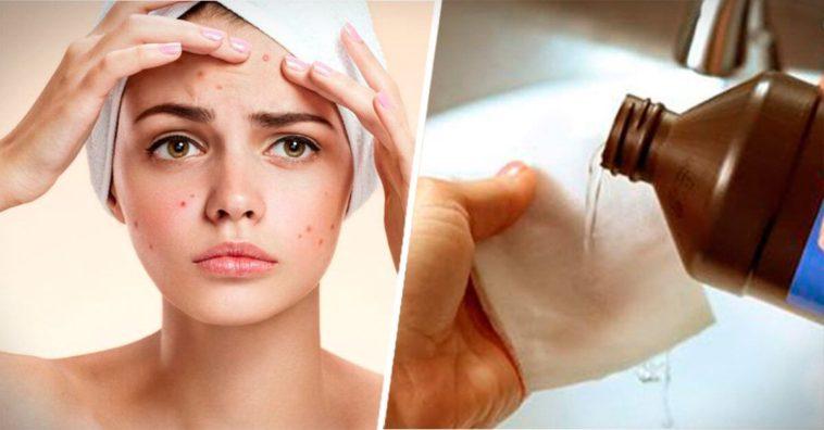 Como se limpia la cara con agua oxigenada