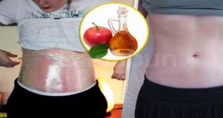 Vinagre de manzana propiedades para bajar de peso
