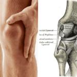 Lesiones cartilago de la rodilla