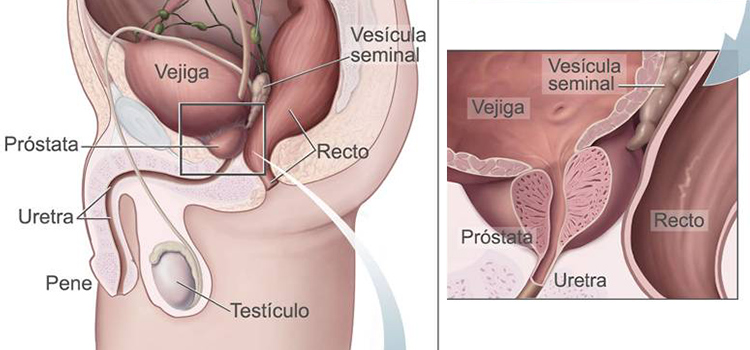falla de eyaculación y próstata 10 de próstata