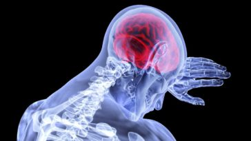síntomas de derrame cerebral