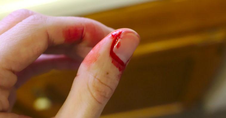 remedios caseros para curar heridas